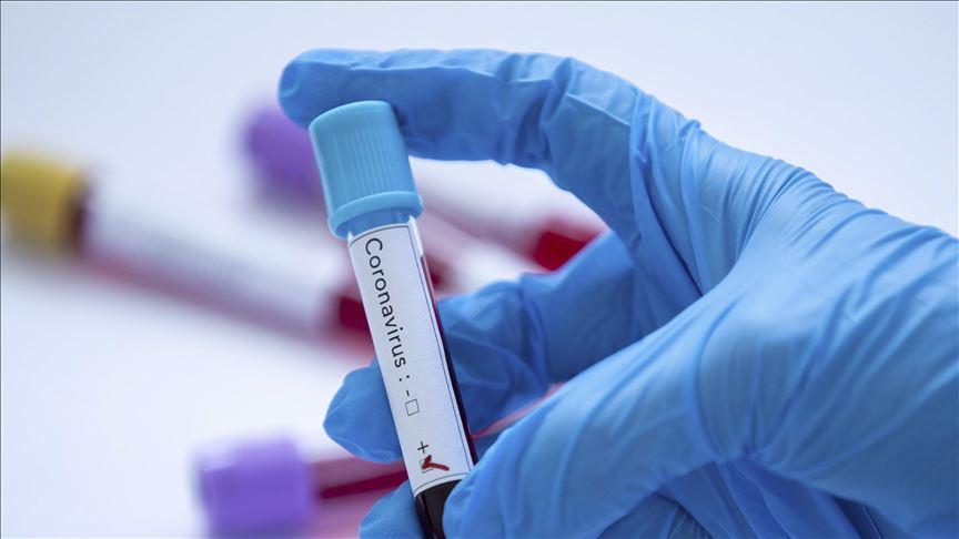 Laboratorio de MDS México donde analizarán impacto del Covid en genoma mexicano